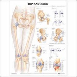 Hip & Knee Chart 26 X 20