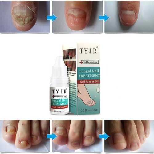 10ML Fungal Nail Treatment Nail Nutrient Solution